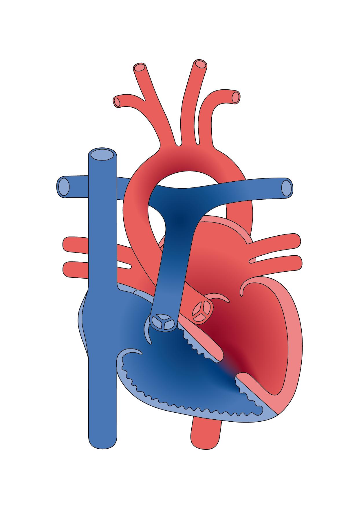 Congenital Heart Disease Diagrams - Christine Keller Graf